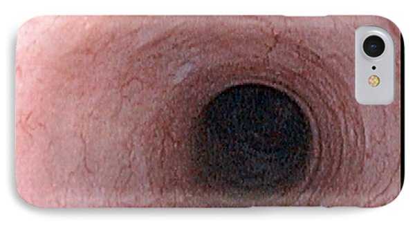 Oesophagus IPhone Case by David M. Martin, Md