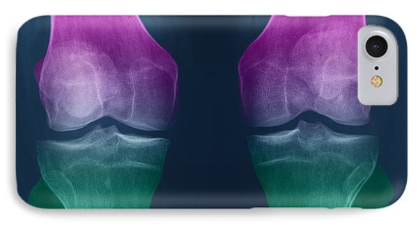 Osteoarthritis Of The Knees Phone Case by Ted Kinsman