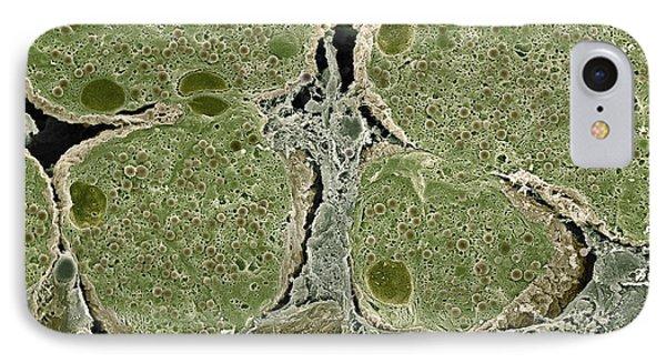 Pancreas Cells, Sem Phone Case by Steve Gschmeissner