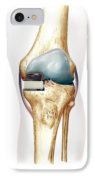 Partial Knee Replacement, Artwork Phone Case by D & L Graphics
