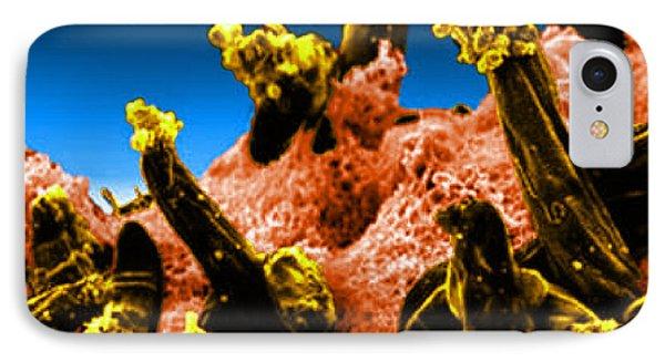 Plasmodium Gallinaceum, Sem Phone Case by Science Source