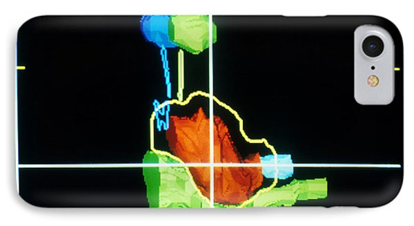 Proton Beam From Brain During Ct Scan Phone Case by Science Source