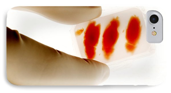 Rat Brain Slices Phone Case by Mauro Fermariello