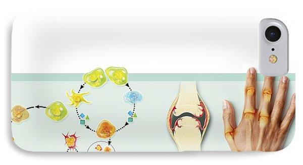 Rheumatoid Arthritis Mechanism, Artwork Phone Case by Claus Lunau