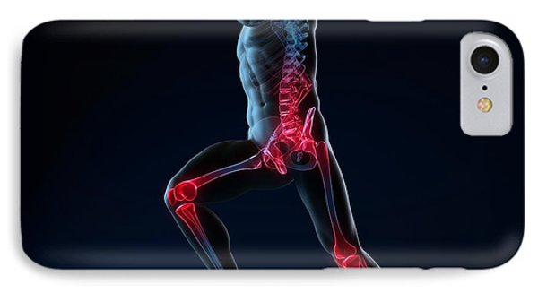 Running Injuries, Conceptual Artwork Phone Case by Sciepro