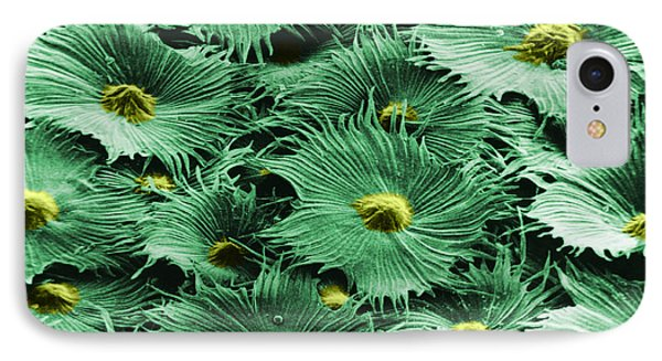 Russian Silverberry Leaf  Phone Case by Asa Thoresen and Photo Researchers
