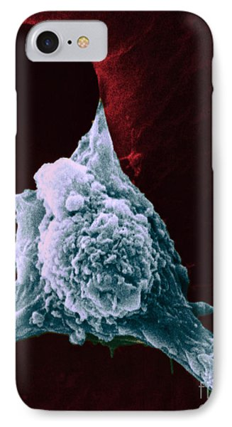 Sem Of Metastasis Phone Case by Science Source
