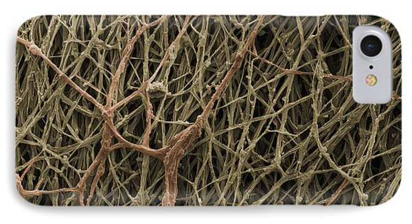 Sem Of Mycelium On Mushrooms IPhone Case by Ted Kinsman