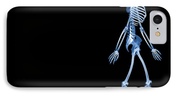 Skeletons Of A Human And Rats, X-ray IPhone Case by D. Roberts