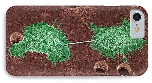 Skin Cancer Cell Dividing, Sem Phone Case by Steve Gschmeissner
