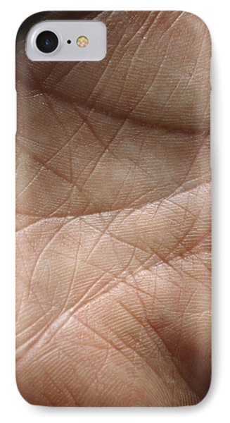 Skin Phone Case by Mike Devlin