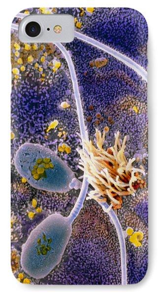Sperm In Uterus Phone Case by Professor P. Motta, Department Of Anatomy, Rome University