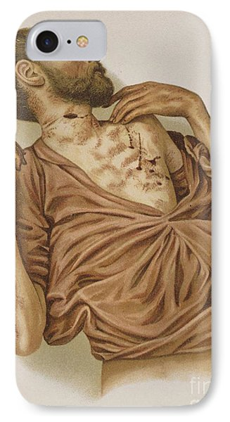 Suicide Through Stabbing 1898 Phone Case by Science Source