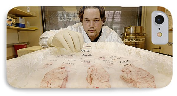 Technician Examines Human Brain Sections Phone Case by Volker Steger