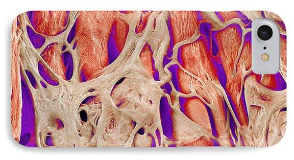 Trabeculae Carneae In The Heart, Sem Phone Case by Susumu Nishinaga
