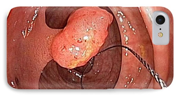 Tubular Polyp In The Colon IPhone Case