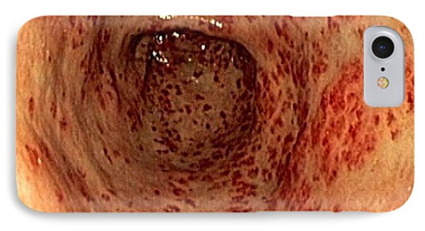 Vascular Ectasia In The Stomach IPhone Case