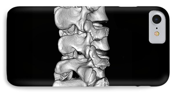 View Of Lumbar Spine Phone Case by Medical Body Scans
