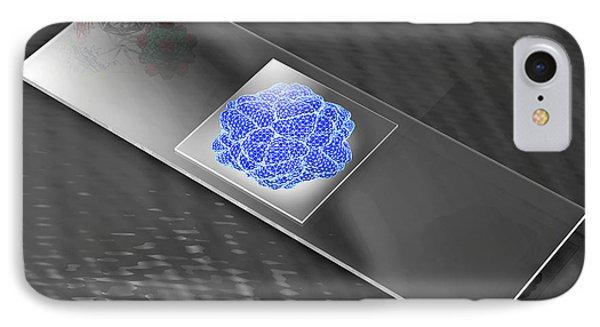 Virus On Microscope Slide Phone Case by Laguna Design