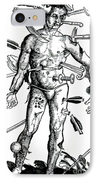 Wound Man 1517 Phone Case by Science Source