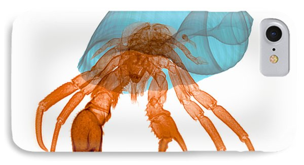 X-ray Of Hermit Crab Phone Case by Ted Kinsman