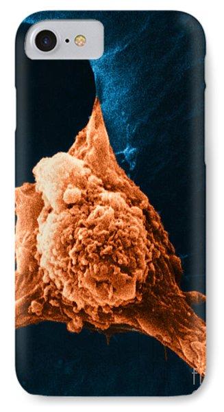 Metastasis Phone Case by Science Source