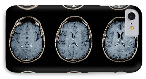Normal Brain, Mri Scans IPhone Case by Zephyr