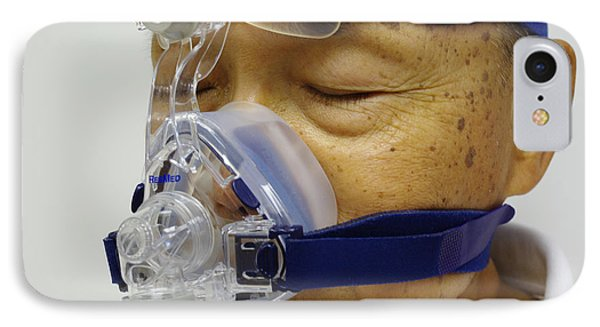 Sleep Apnea Treatment IPhone Case by Scimat