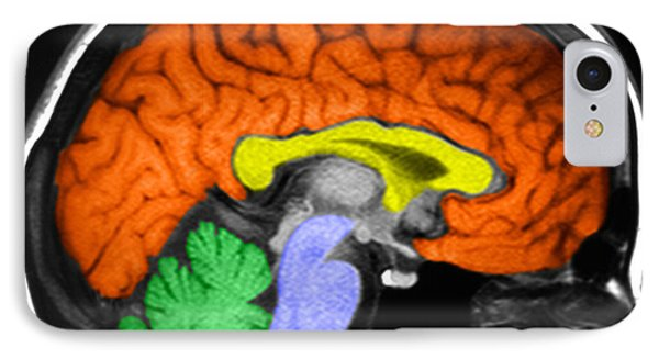 Human Brain IPhone Case by Ted Kinsman