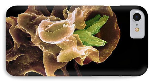 Macrophage Engulfing Tb Bacteria, Sem IPhone Case by