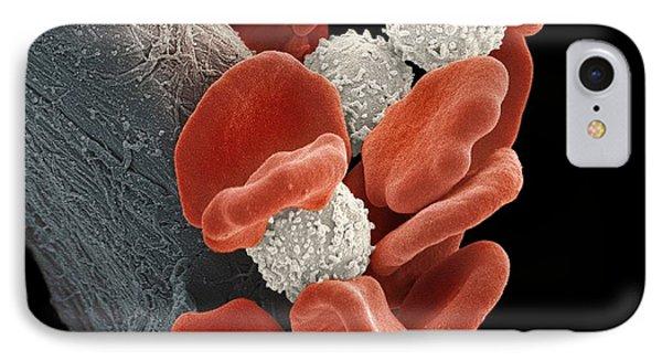 Leukaemia Blood Cells, Sem Phone Case by Steve Gschmeissner