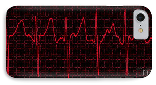 Atrial Fibrillation Phone Case by Science Source