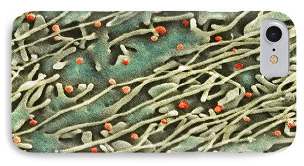 Hepatitis C Viruses, Tem Phone Case by Thomas Deerinck, Ncmir