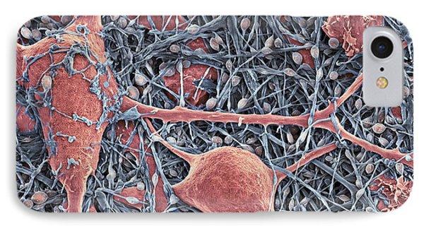 Nerve Cells And Glial Cells, Sem Phone Case by Thomas Deerinck, Ncmir
