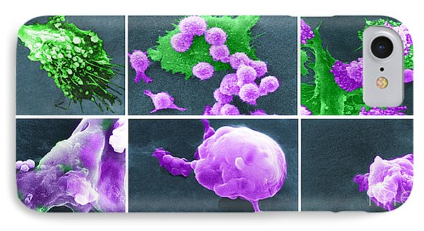 Cancer Cell Death Sequence, Sem Phone Case by Science Source