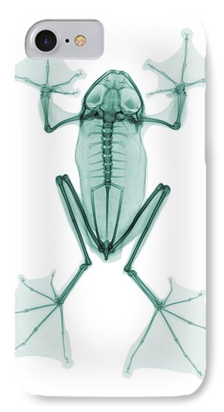 An X-ray Of A Flying Frog IPhone Case by Ted Kinsman