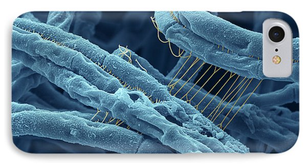 Anthrax Bacteria Sem Phone Case by Eye Of Science and Photo Researchers