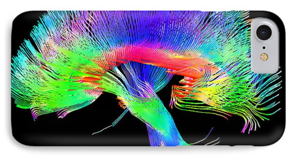 Brain Pathways IPhone Case by Tom Barrick, Chris Clark, Sghms