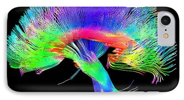 Brain Pathways IPhone Case