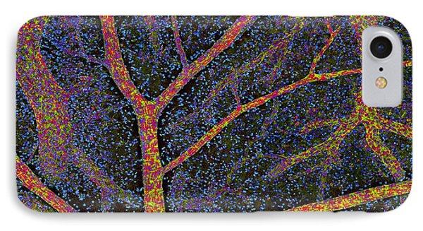Brain Tissue Blood Supply Phone Case by Thomas Deerinck, Ncmir