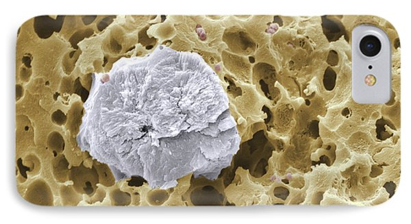 Calcium Phosphate Crystal Sem IPhone Case by Scimat