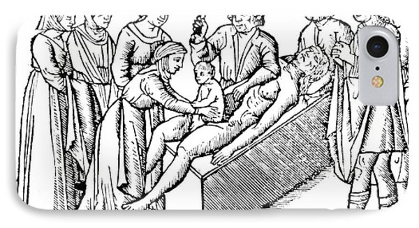Cesarean Section 16th Century Phone Case by Science Source