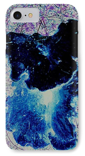 Complex Creations IPhone Case by Karl Reid