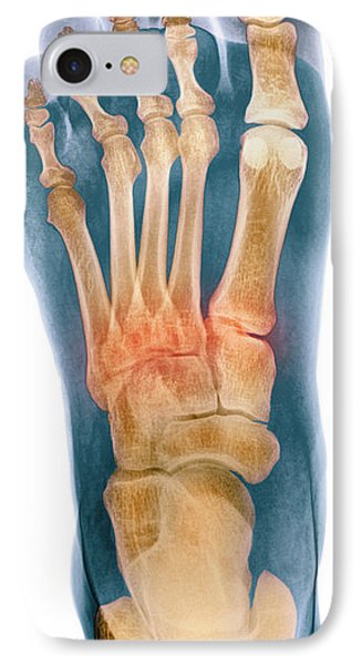 Crushed Broken Foot, X-ray Phone Case by