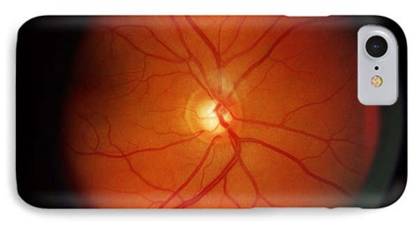 Glaucoma Phone Case by Science Source