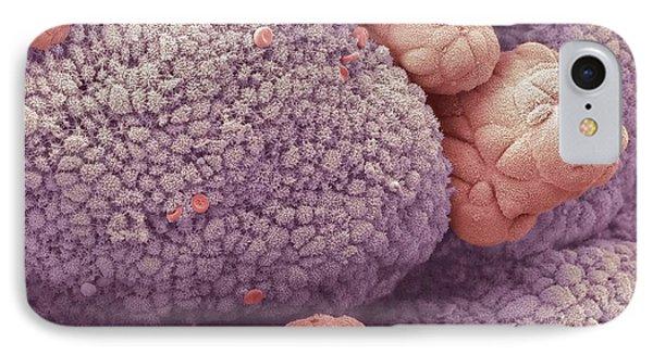 Intestinal Papillomas, Sem Phone Case by Steve Gschmeissner