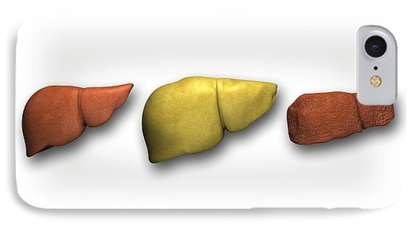 Liver: Normal, Fatty, Cirrhotic Phone Case by Pasieka