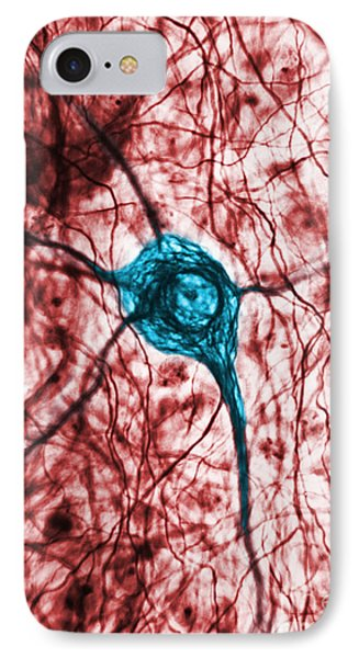 Neuron, Tem Phone Case by Science Source