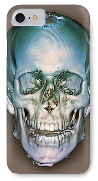 Normal Skull, 3d Ct Scan IPhone Case by Zephyr