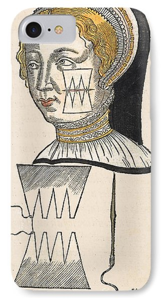 Pare Suture, 1500s IPhone Case by Wellcome Images